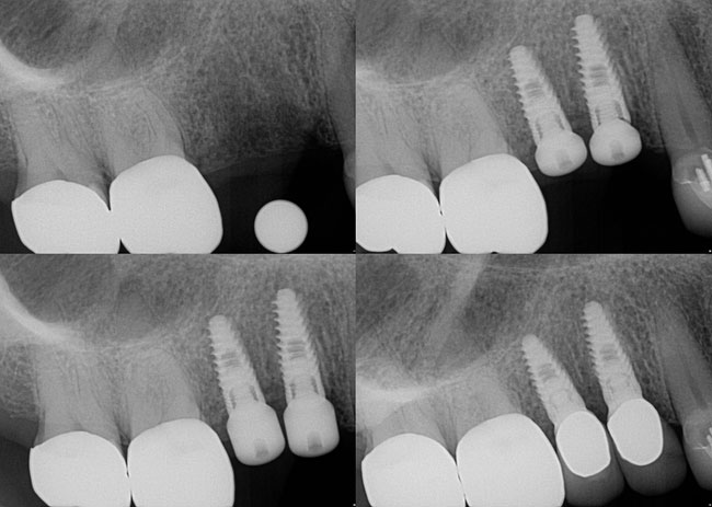 Before Dental Implants - Midlothian, VA