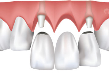 Family Dentist - Dental Crowns - Midlothian, VA