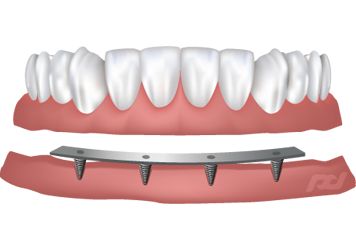 Bar Retained Dental Implants - Midlothian, VA